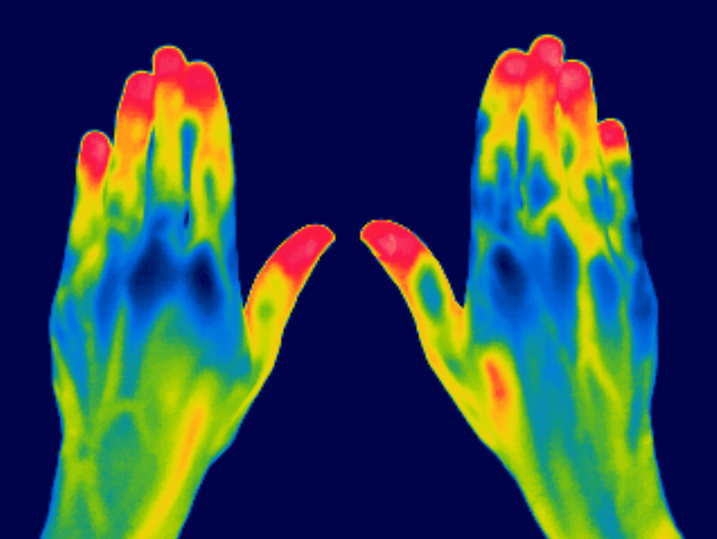Thermographic image of hands